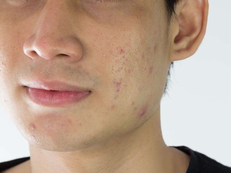 acne pores skin