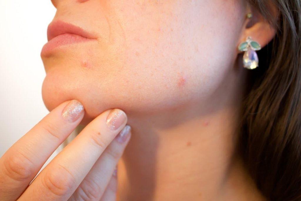 Acne scar face
