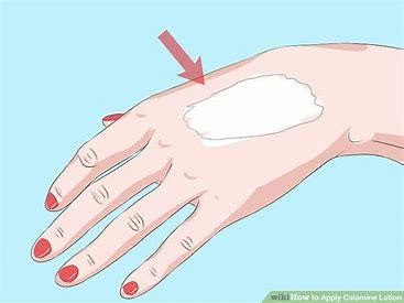 calamine lotion on back of the hand